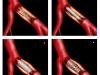 Cirugia Endovascular - 1