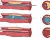 Cirugia Endovascular - 2